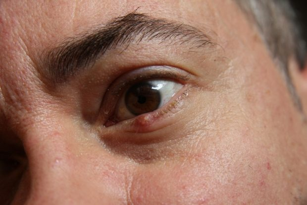 5 Ways to get rid of a stye