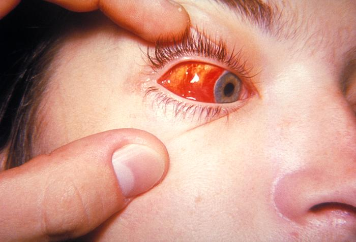Conjunctivitis – Types and symptoms