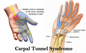 carpel tunnel syndrome