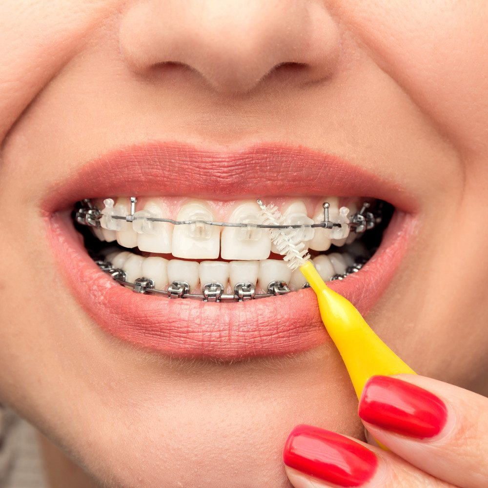 remove the remains stuck to your teeth