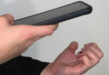 Smartphone Detects Anemia With 70% Accuracy